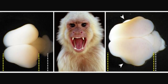 Uh-Oh, Scientists Used Human Genes to Make Monkey Brains Bigger